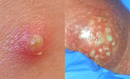 Boils Abscesses Carbuncles Symptoms And Diagnosis