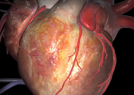 Coronary disease heart attack symptoms and diagnosis coronary arteries and arterial branches on surface of the heart ccuart Image collections