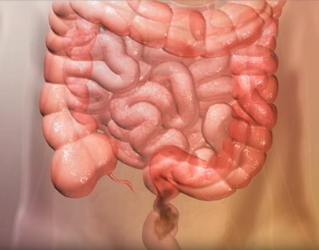 Rapid Intestinal Transit - Symptoms, Diagnosis and Treatment