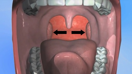 Tonsil Stones - Symptoms, Diagnosis and Treatment