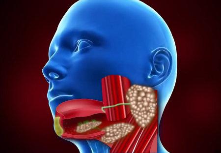 Sjogren's Syndrome - Symptoms, Diagnosis and Treatment