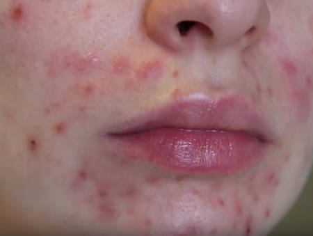 Adult Acne Symptoms Diagnosis Treatment And Information